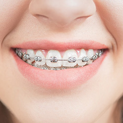Closeup of smile with bracket and wire braces