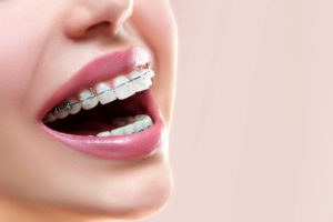 close-up of smile with braces